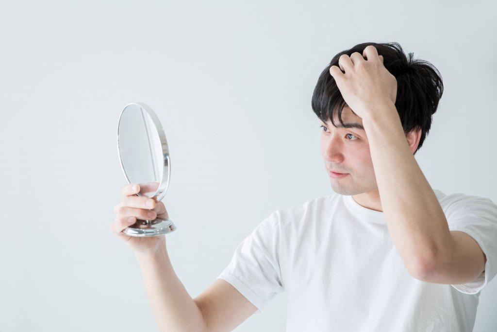 hair-loss-男性髪のトラブル