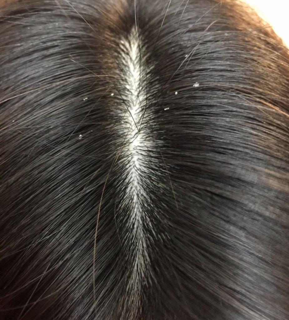 hair-loss-フケ